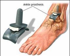 distrugerea articulației gleznei ultima etapă a artrozei)