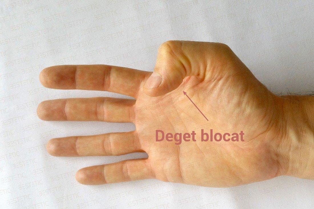 durere în articulația degetului mic pe mâna dreaptă)