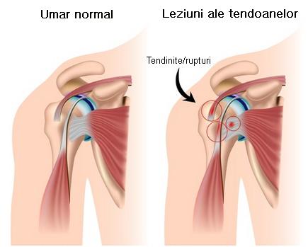 durere în articulația umărului în timpul efortului fizic)