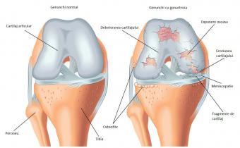 durere persistentă în articulația genunchiului)