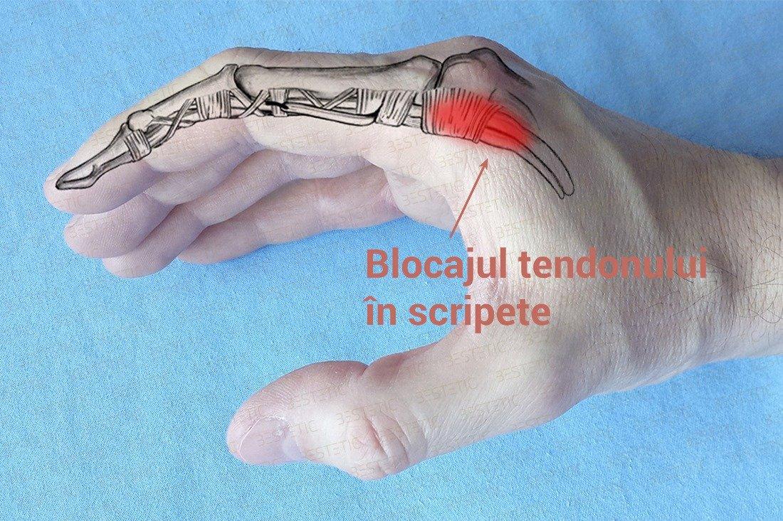 durere sacadată într-o articulație a degetului)