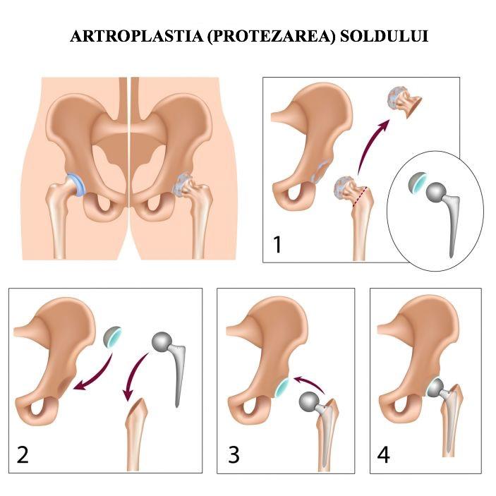 durere severă în articulația șoldului din dreapta
