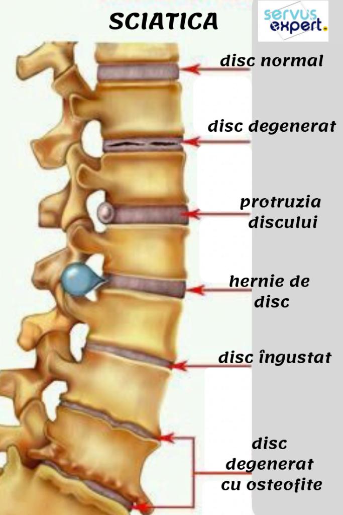 Durere lombară, durere de spate, calmare și gestionare
