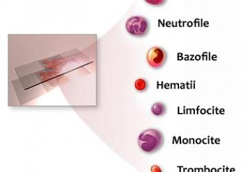 Cauze ale monocitelor crescute în sânge - Inima atac July, Dureri articulare și monocite