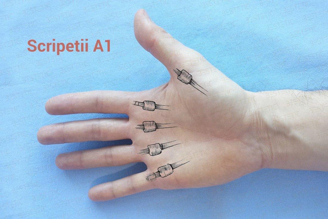 dureri articulare la flexia unui deget
