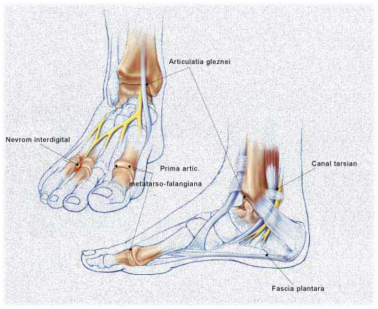 dureri articulare picior injecții