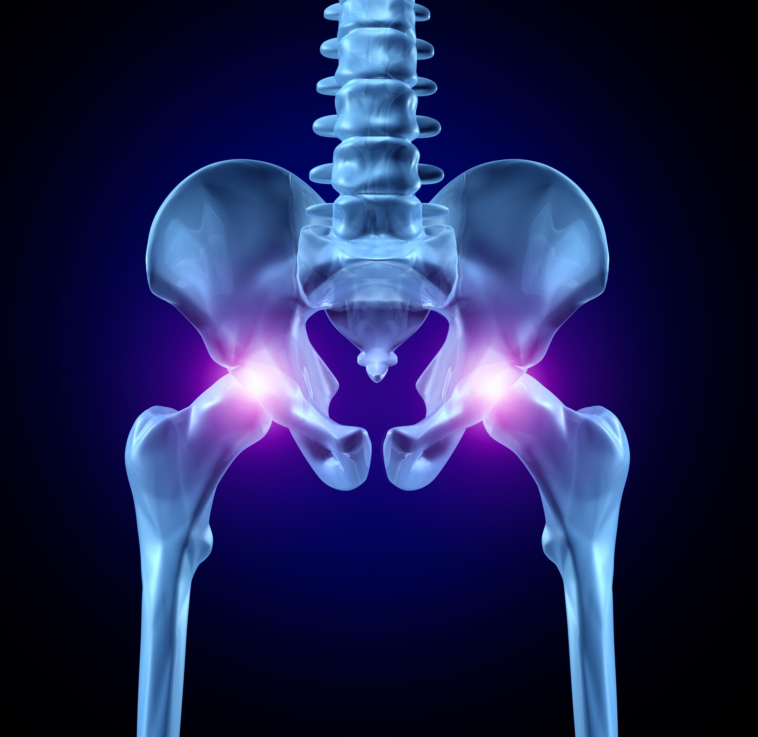 dureri de genunchi cu coxartroza articulației șoldului