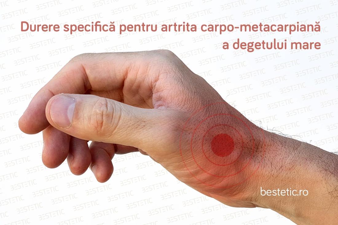 dureri la încheietura mâinii după naștere