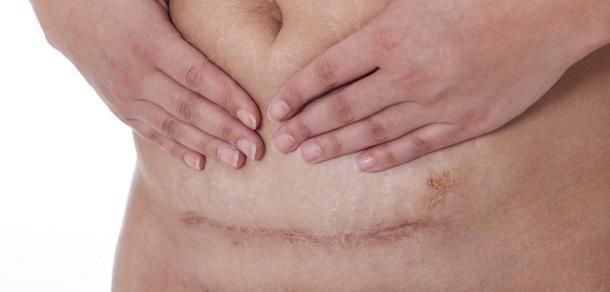 dureri musculare și articulare după naștere