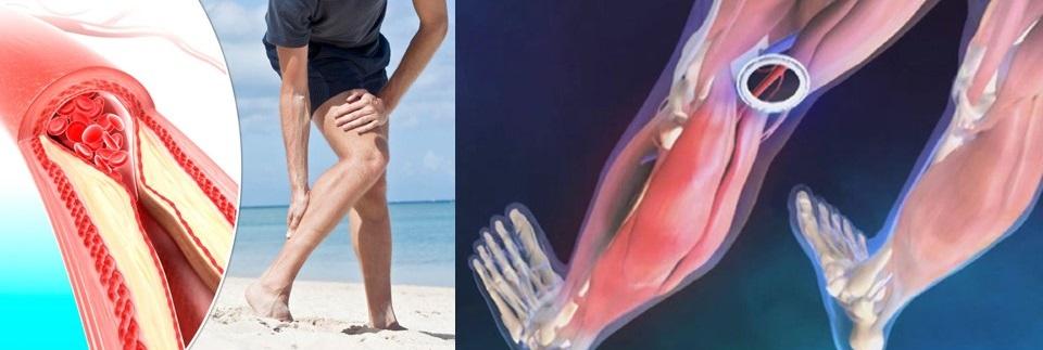 Dieta pentru durere în articulațiile picioarelor, Durerea Articulatiilor - Tipuri, Cauze si Remedii