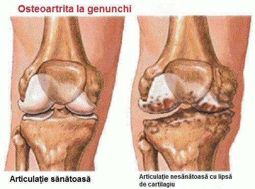 primele simptome ale artritei gleznei)