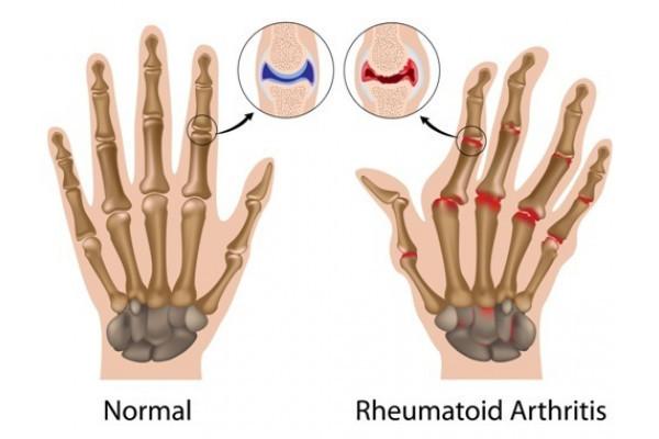 artrita sinovită cum să tratezi