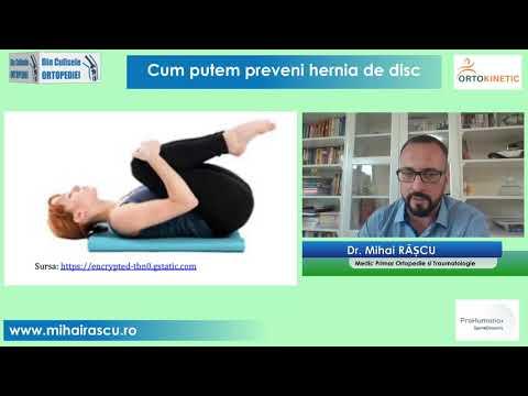 osteochondroza unguentului vertebrei cervicale