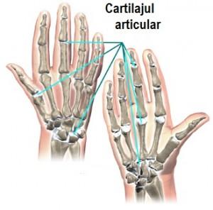 un mijloc de întărire a articulațiilor cartilajului)