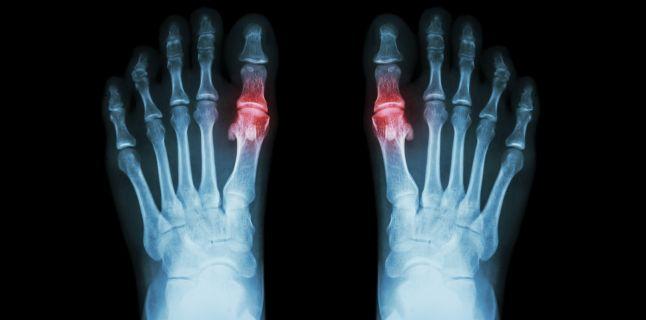 artroza tratament cu gută)