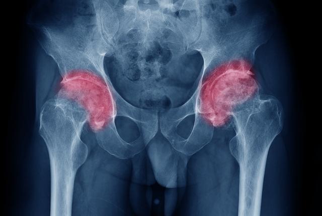 tratamentul articulației șoldului stâng)