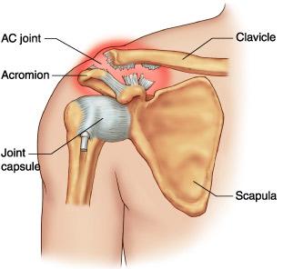 medicament pentru ruperea ligamentelor articulației umărului