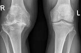gonartroza genunchiului stâng
