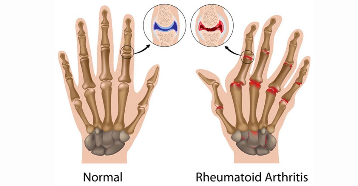 Artroza: cele mai frecvente cauze si cum o recunosti