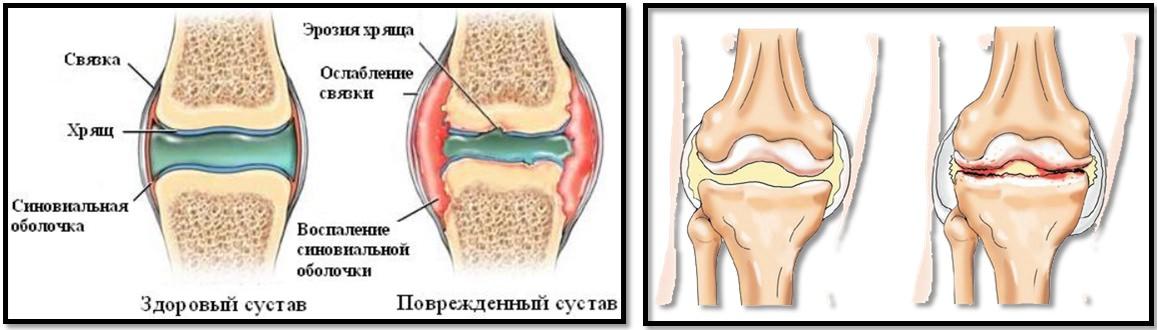 Elipsoid pentru artroza genunchiului