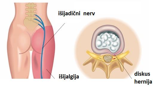 Este posibilă tratarea articulațiilor bolnave?