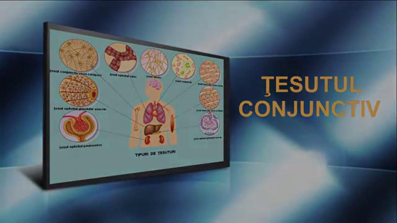 țesut conjunctiv și boli umane