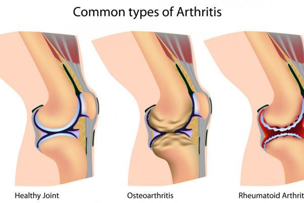 sinovita unguentului articulației genunchiului)
