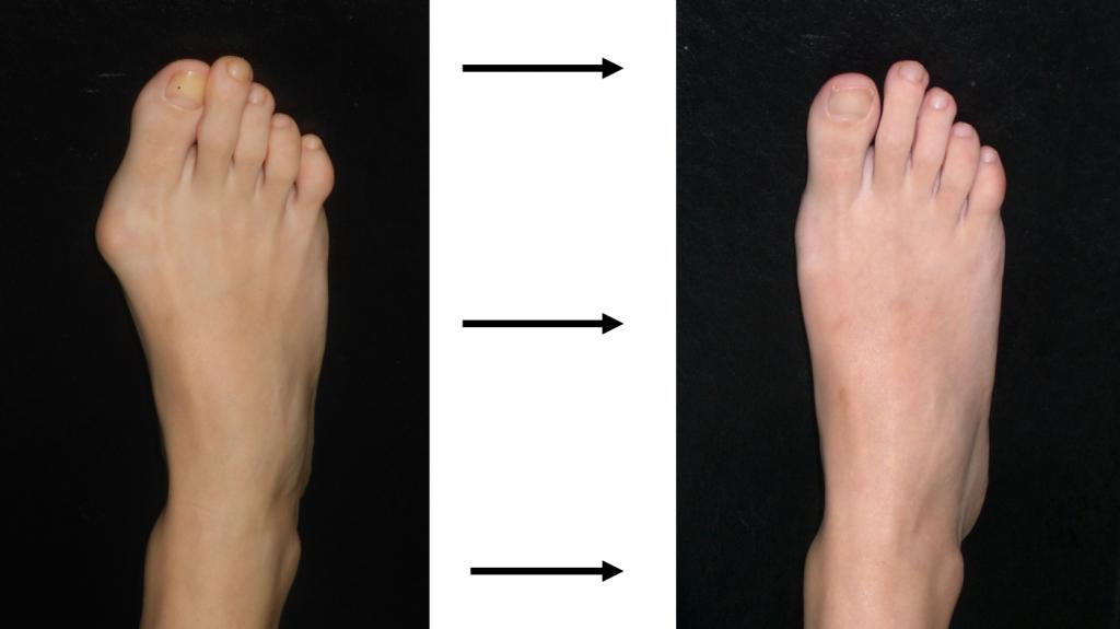 Monturile (hallux valgus): cauze, simptome si tratament - blumenonline.ro