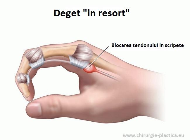 durere a articulației degetului arătător al mâinii drepte)