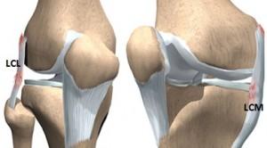 Deteriorarea ligamentelor laterale ale genunchiului. Genunchiul Ligamentului Tratament Fals