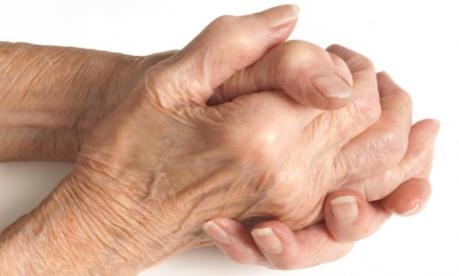 artroza boala tratament artrita)
