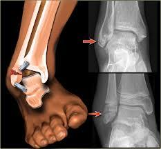 tratamentul fracturii gleznei externe)
