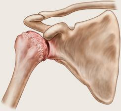 artroza articulației umărului cu