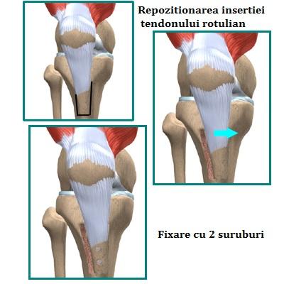 Tratamentul articular al degetului doi