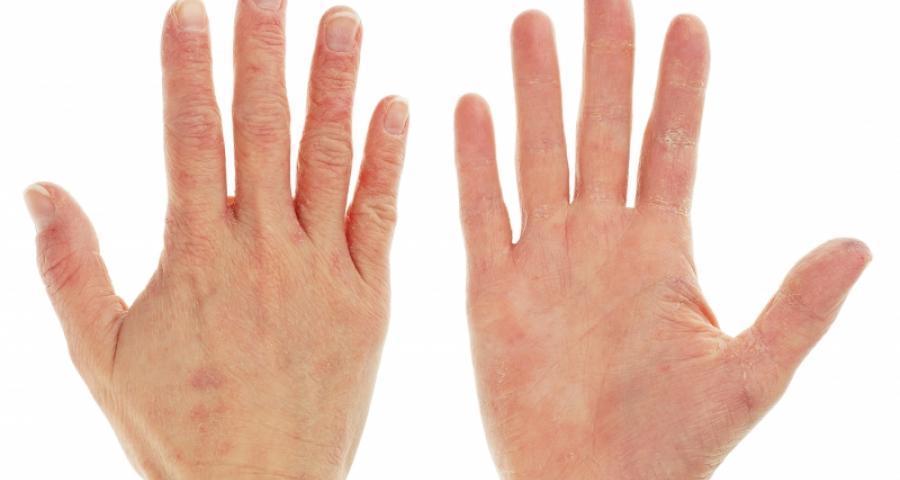 pete roșii pe mâinile dureri articulare