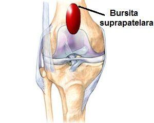 bursita retropatelară a tratamentului articulației genunchiului)