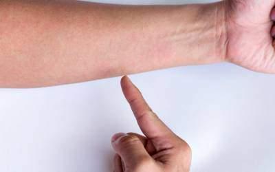 inflamația articulațiilor de pe coate