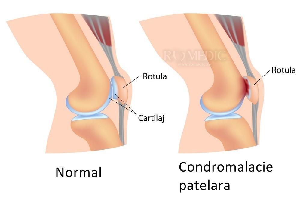 genunchi adânc în interiorul articulației