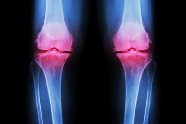 gonartroza bilaterală a genunchiului tratamentului de gradul II
