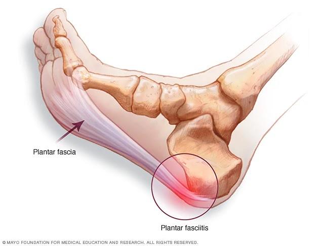 Durerile de calcai, Inflamația articulară radială