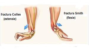 inflamație articulară după o fractură a brațului)