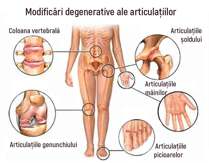cum să tratezi artrita musculară dureri la nivelul hipocondrului articular și drept