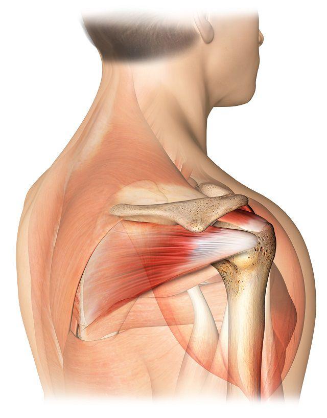 manșeta rotativă a tratamentului articulațiilor umărului