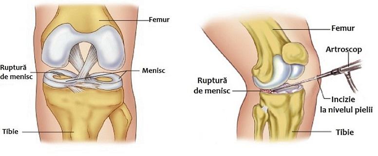 menisc și ligamentul tratamentului articulației genunchiului