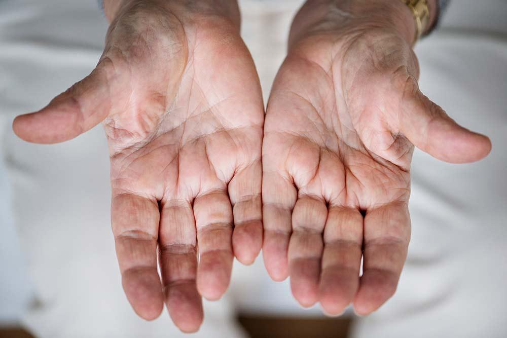 mâinile umflate și dureri