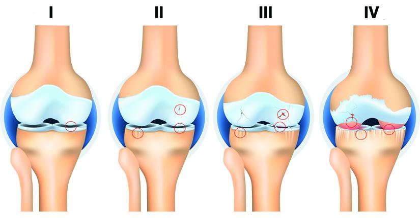 început artroza tratamentului articulației genunchiului