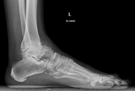 numele osteoartritei gleznei tratamentul bolilor articulare și ale coloanei vertebrale