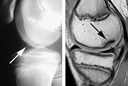 osteochondroza juvenilă a genunchiului)