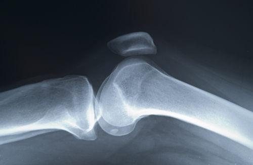 poate osteoporoza afecta toate articulațiile)