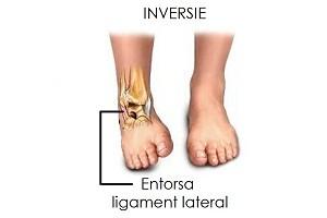 dacă durere acută în articulația șoldului dureri de sold la ridicarea picioarelor